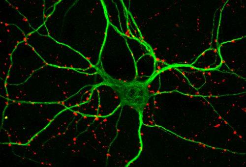 100x-map2-synapsin